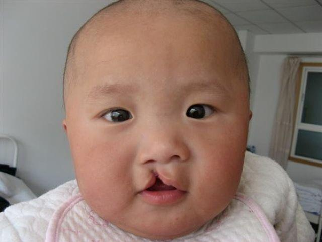 Feeding Babies With Cleft Lips And Cleft Palate