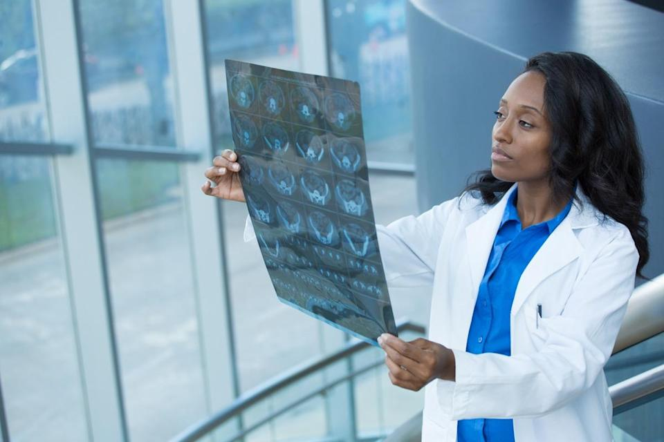 Closeup portrait of intellectual woman healthcare personnel with white labcoat, looking at full body x-ray radiographic image, ct scan, mri