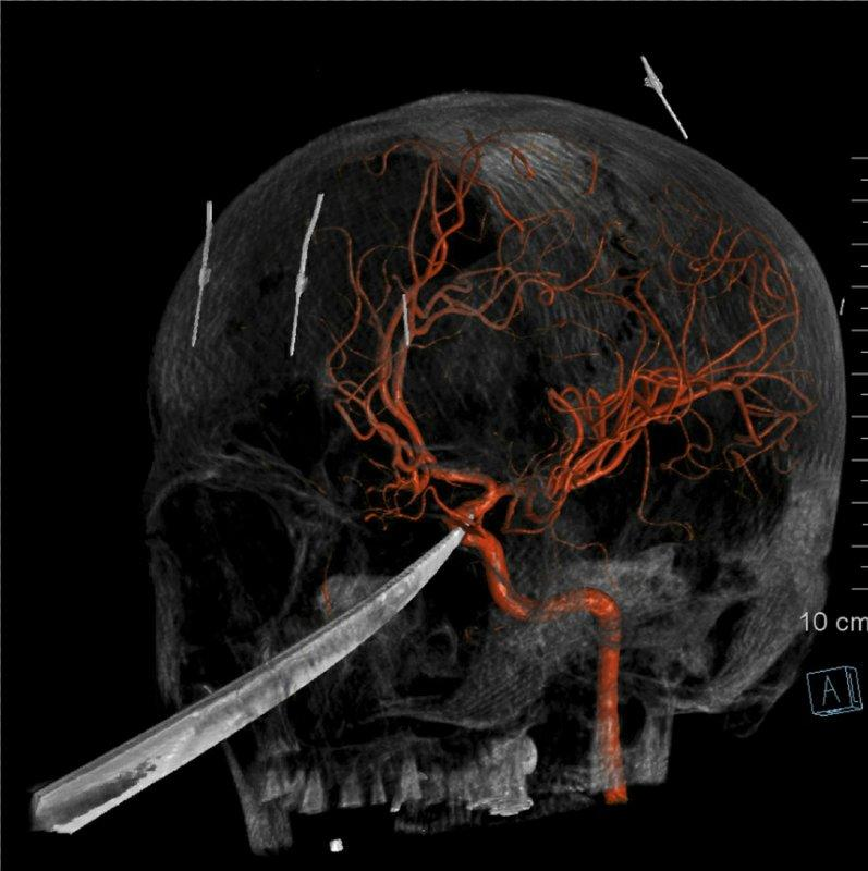 The knife was embedded into his skull, extending to the underside of the brain. The tip of it had indented the carotid artery, the major artery which supplies blood to the brain. Source: The University of Kansas Health System via AP
