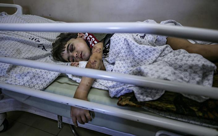A Palestinian boy who was wounded in Israeli airstrikes lies in Al-Shifa hospital in Gaza City - HAITHAM IMAD/EPA-EFE/Shutterstock