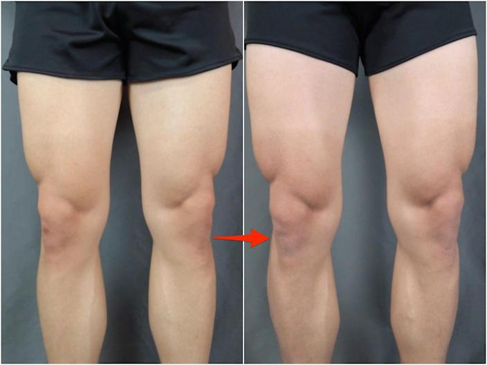A transformation photo of Evan Zhang's legs before and after doing 300 squats a day for 30 days.