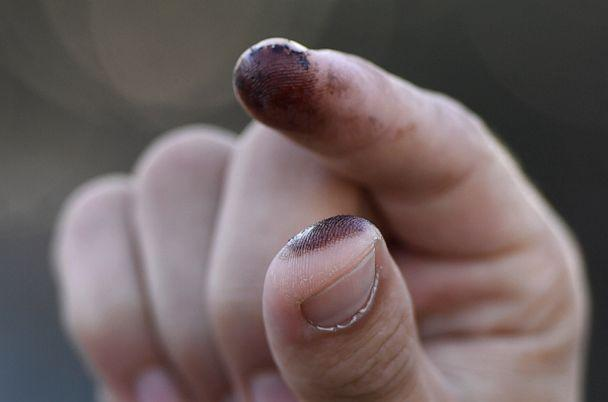 PHOTO: A person shows oil on their fingers after touching it on the beach in Huntington Beach, California, Oct. 3, 2021. (Patrick T. Fallon/AFP via Getty Images)