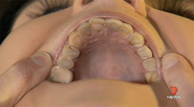 Matheson sat through nine root canals in her 'horror movie' experience. Source: 7News