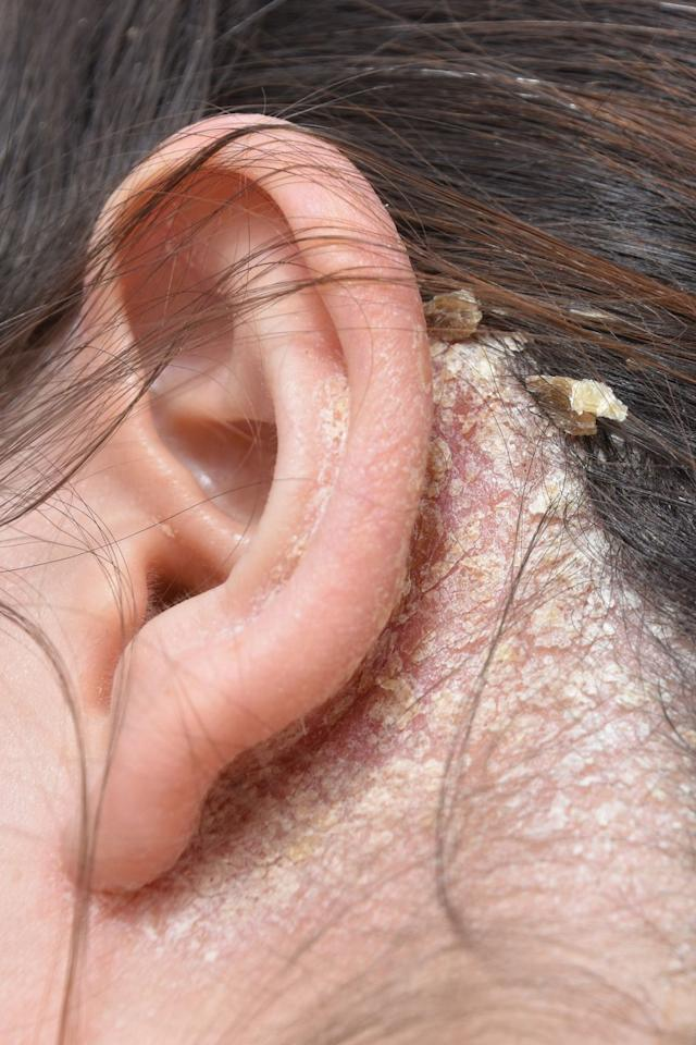 "<p>It isn't usually thought of as eczema, but <a href=""https://www.goodhousekeeping.com/health/a35426/common-scalp-issues-how-to-treat-them/"" target=""_blank"">scalp dandruff</a> falls in this category. Besides your head, you might also find the greasy plaques and flakes on the eyebrows, nose, chest, or back. Doctors believe that in these cases, a yeast that normally appears in the skin overgrows in gland-produced oils, causing the immune system to react.</p><p><strong>The treatment:</strong> A doctor would probably recommend an anti-yeast shampoo, like OTC options <a href=""https://www.amazon.com/Head-Shoulders-Clinical-Seborrheic-Dermatitis/dp/B01MFGTAO5"" target=""_blank"">Head and Shoulders</a> and <a href=""https://www.amazon.com/Selsun-Blue-Medicated-Strength-Dandruff/dp/B001UGL84U/"" target=""_blank"">Selsun Blue</a>, or a prescription version. </p>"
