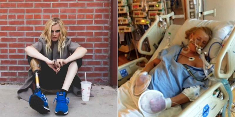 24 Year Old Model Who Lost Her Leg From Using Tampons I Was 10 Minutes From Death