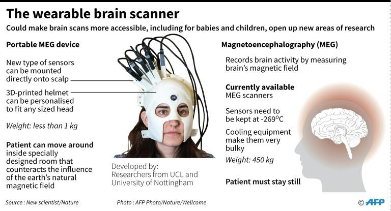 The wearable brain scanner