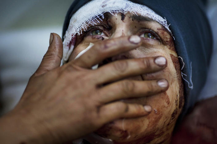 In this Saturday, March 10, 2012 photo, Aida cries as she recovers from severe injuries after the Syrian Army shelled her house in Idlib, north Syria. Aida's husband and two of her children were killed after their home was shelled. (AP Photo/Rodrigo Abd)