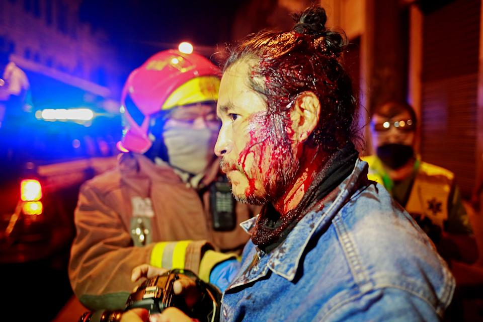 <p>A protestor is given medical treatment after the Congress building in Guatemala City was set alight.</p>EPA
