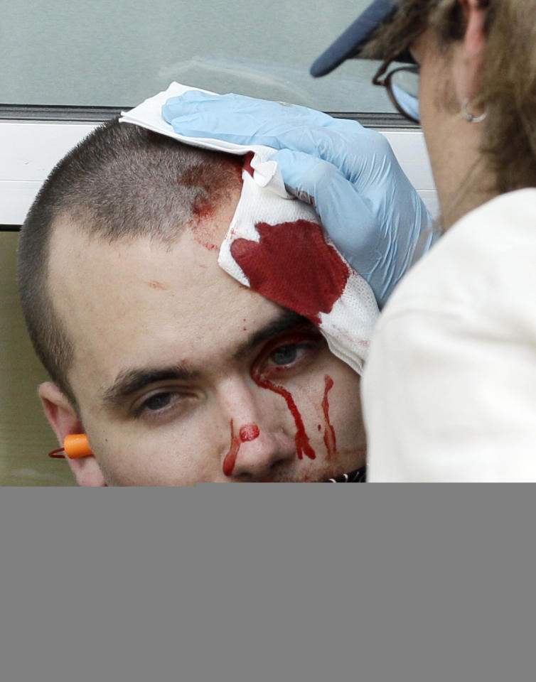 A protester is helped after sustaining an injury at a protest march and rally during this weekend's NATO summit in Chicago Sunday, May 20, 2012 in Chicago. (AP Photo/Nam Y. Huh)
