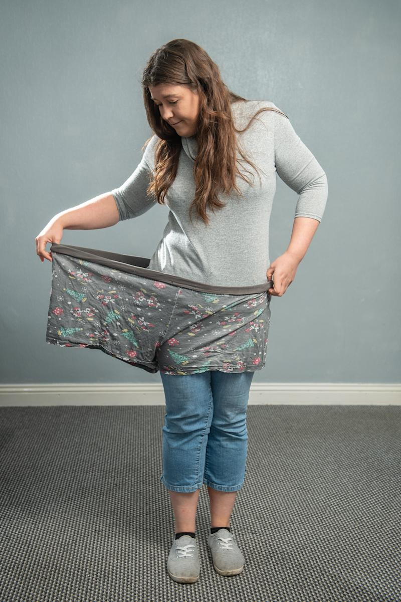 Sarah Wass now fits into a single leg of her old pyjama shorts. [Photo: SWNS]