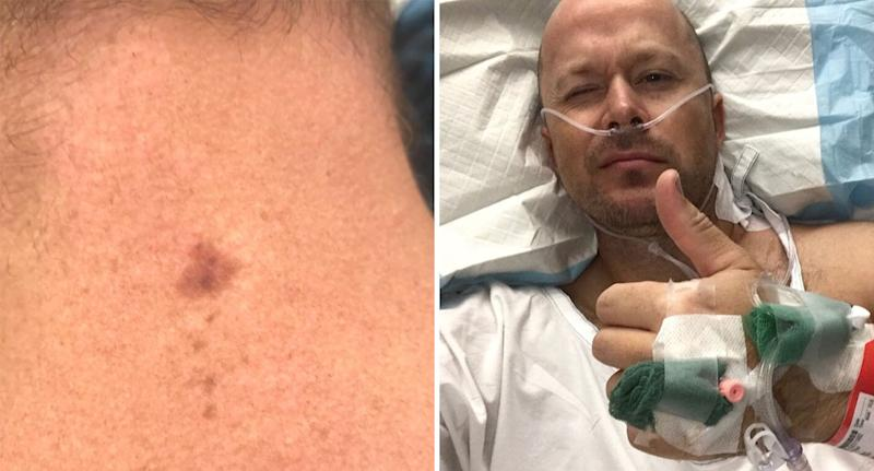 Perth dad Ryan Glossop shown with mole on neck and in hospital after surgery.