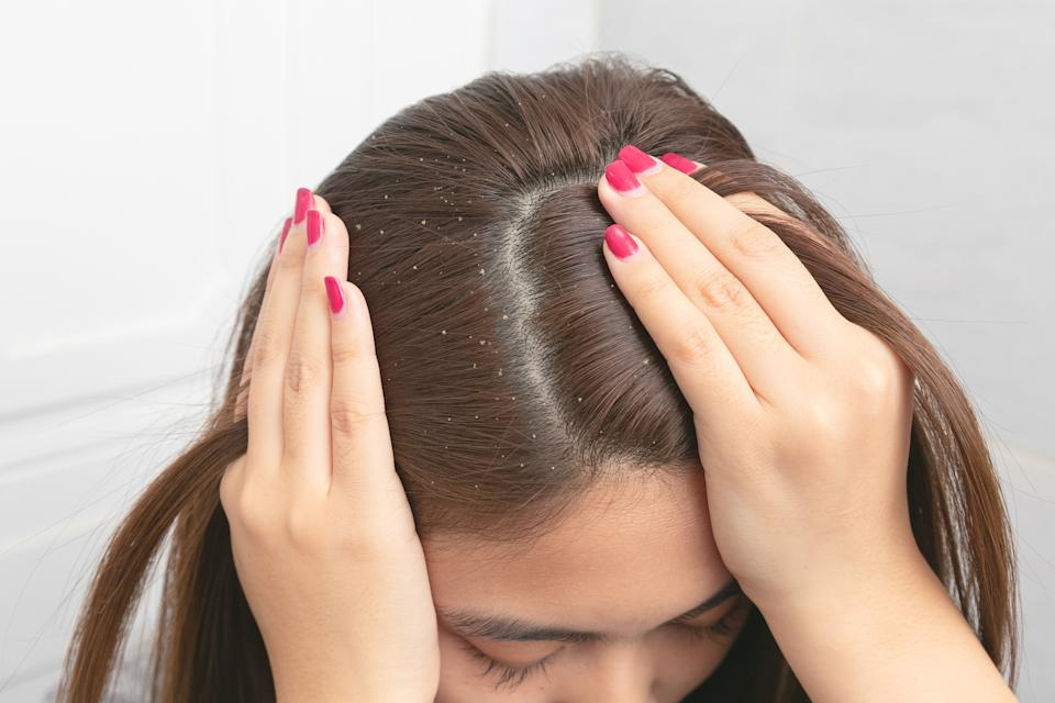Close up hair at the dandruff on brown female hair.