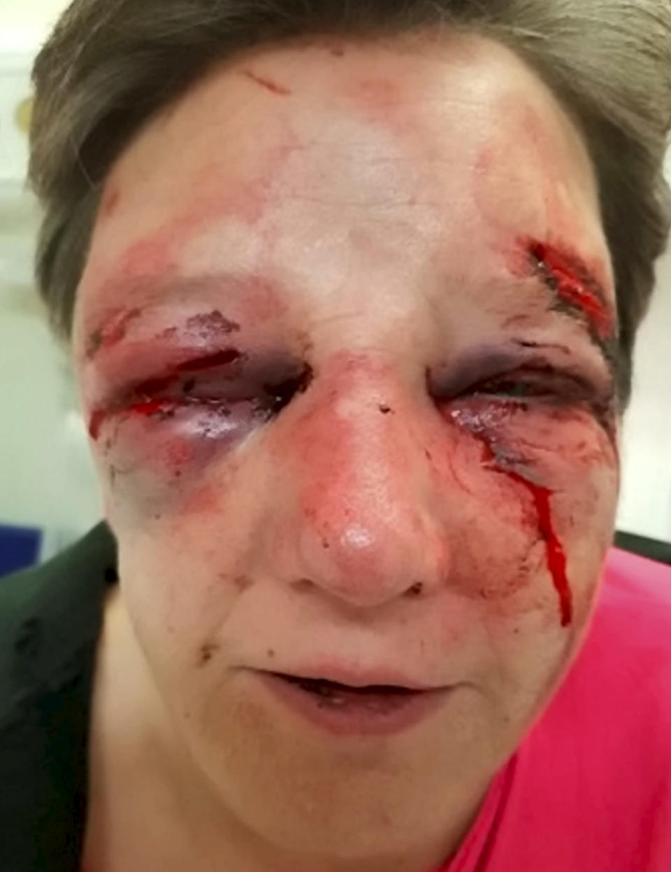 '<em>Viciously attacked' – police said it will take the woman a considerable amount of time to recover (Picture: SWNS)</em>