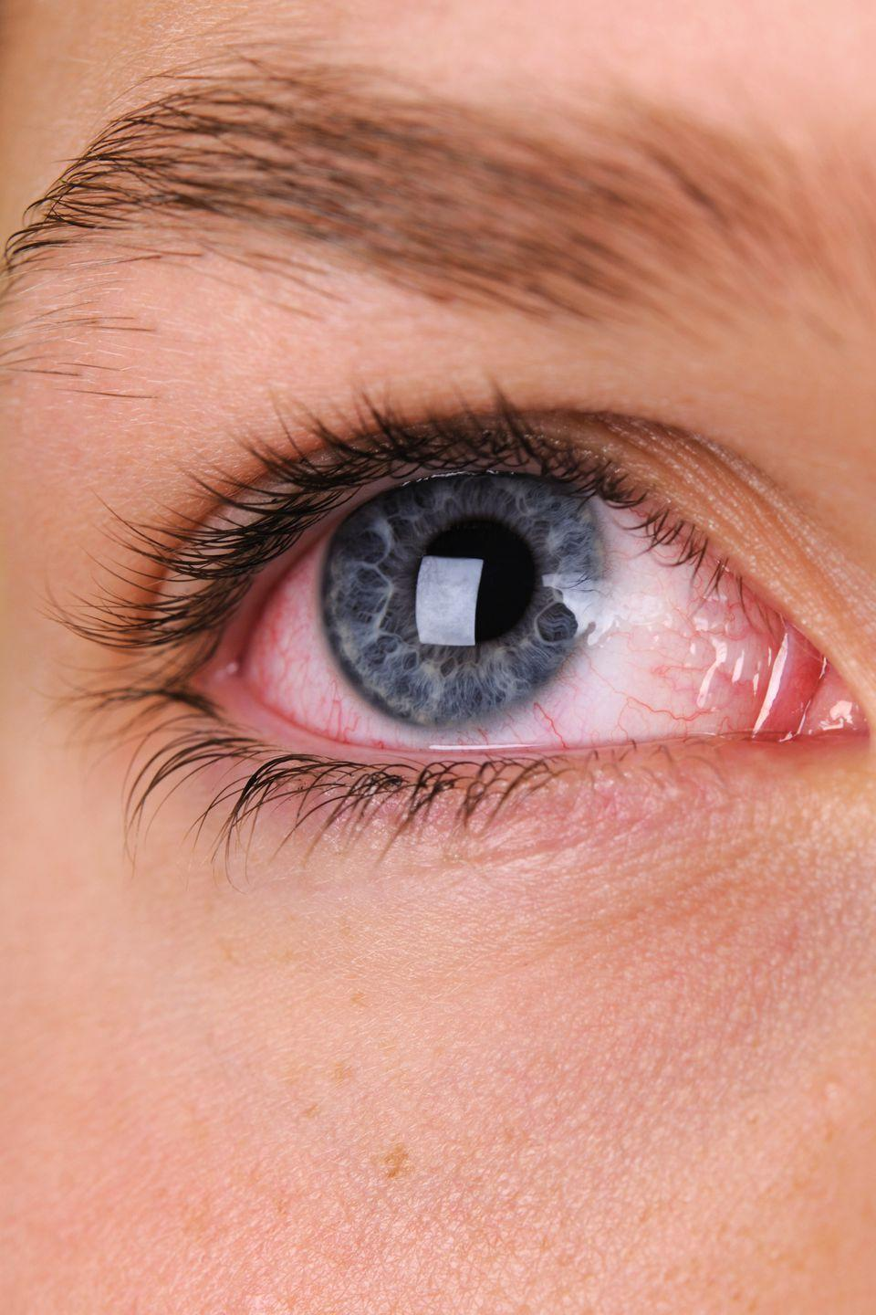 """<p>Broken blood vessels may look alarming, but for the most part they're simply an indication that your eyes are working overtime. """"It most likely is caused <a rel=""""nofollow noopener"""" href=""""https://www.womansday.com/food-recipes/a57427/cough-cure-chocolate/"""" target=""""_blank"""" data-ylk=""""slk:by coughing"""" class=""""link rapid-noclick-resp"""">by coughing</a> or straining,"""" Dr. Herz explains. """"Even though it looks blood-red and terrible, it is harmless and not indicative of any eye disease.""""<br></p>"""