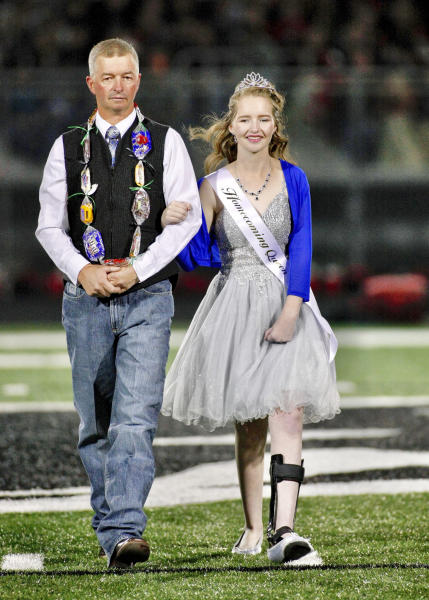 In this Friday, Sept. 27, 2019, photo, Deserae Turner walks with her father Matt Turner at the Homecoming Court ceremony during halftime of Green Canyon's football game in North Logan, Utah. Turner, a Utah high school student who survived a gunshot wound to the head was named homecoming queen by her classmates. Turner was found in a ditch after being shot in the back of the head and left for dead by two classmates in February 2017. (John Zsiray/5150photos.com via AP)