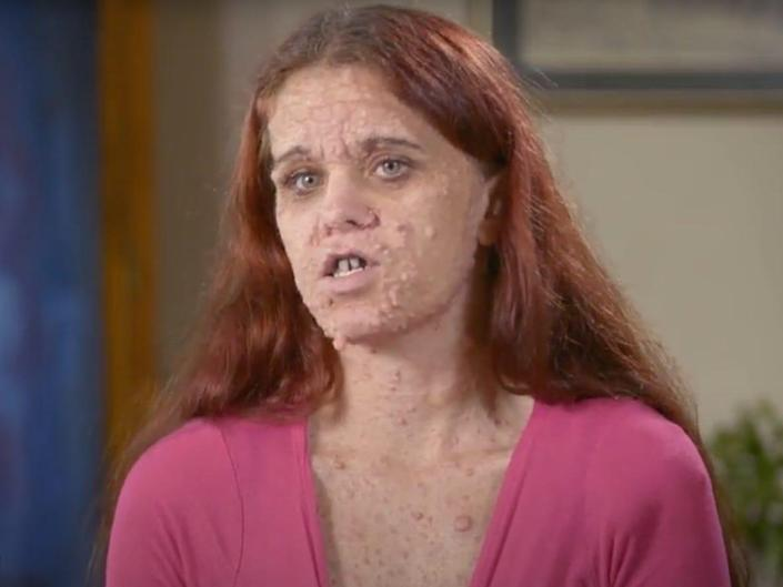 Brittany, a woman with head-to-toe cysts, talks to the camera.