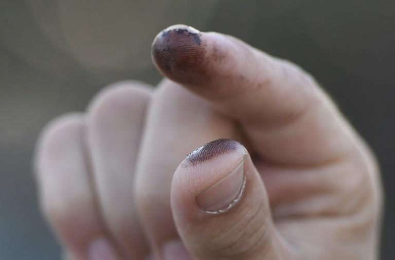 A person shows oil on their fingers after touching it on the beach in Huntington Beach, California on October 3, 2021, after a pipeline breach connected to an oil rig off shore started leaking oil, according to an Orange County Supervisor (AFP/Patrick T. FALLON)