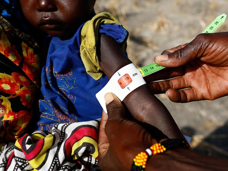 Two-year-old Nyalel Gatcauk has her arm measured by a Unicef nutrition worker (Unicef)