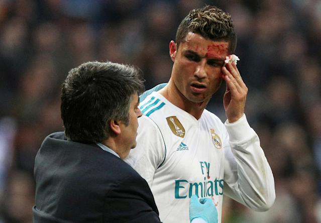 Soccer Football - La Liga Santander - Real Madrid vs Deportivo La Coruna - Santiago Bernabeu, Madrid, Spain - January 21, 2018 Real Madrid's Cristiano Ronaldo receives treatment after sustaining an injury whilst scoring their sixth goal REUTERS/Sergio Perez TPX IMAGES OF THE DAY