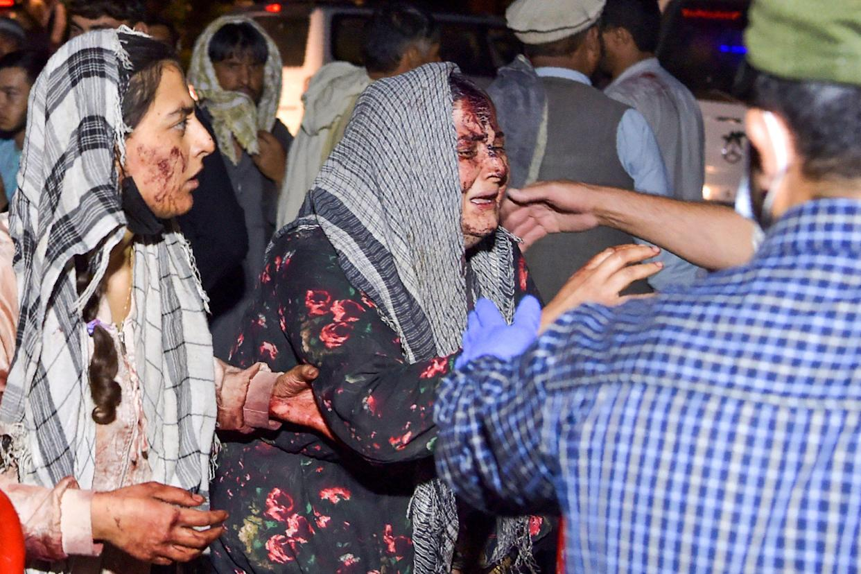 Wounded women arrive at a hospital for treatment after two blasts, which killed at least five and wounded a dozen, outside the airport in Kabul on August 26, 2021. (Wakil Kohsar/AFP via Getty Images)