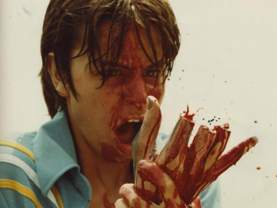 Fisher Stevens, with some missing fingers, in 'The Burning' (Tom Savini)