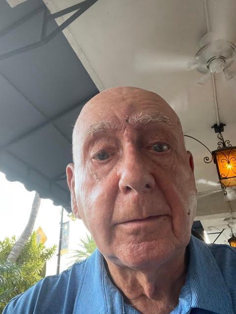 Dick Vitale after having surgery to remove a melanoma growth just above his nose.