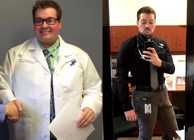 Kevin Gendreau, before and after. (Photos: Courtesy of Dr. Kevin Gendreau)