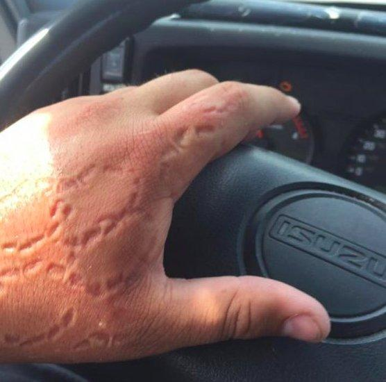 person with bite marks on hand
