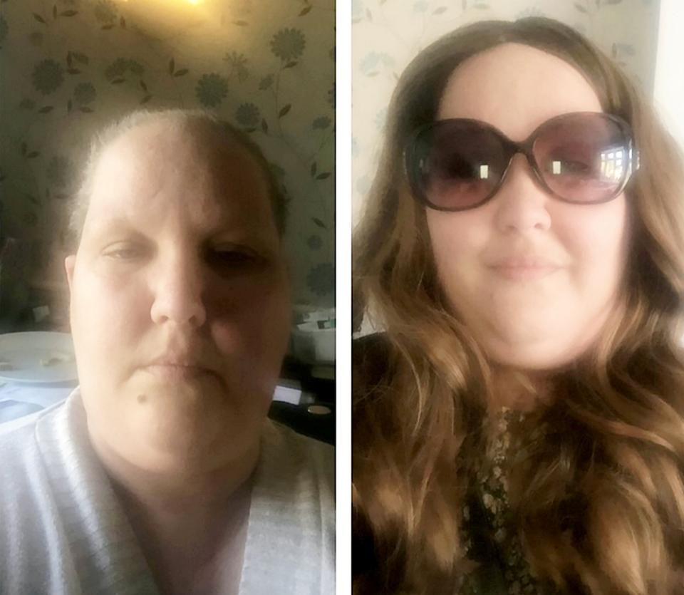 After being diagnosed with inflammatory breast cancer, Heather Bone had chemo, radiotherapy and surgery to remove the breast. (SWNS)