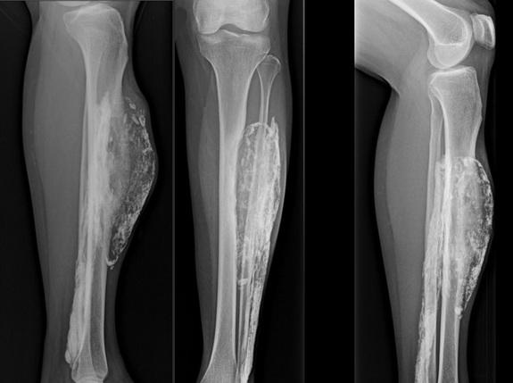 Snakebite Causes Huge Mass in Woman's Leg, 50 Years Later