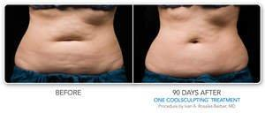 CoolSculpting Procedure Named 'Best Body Treatment' by NewBeauty Magazine; Procedure That Freezes Away Stubborn Fat for Good Ranked #1 by American Society for Dermatologic Surgery