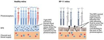Figure 1. Structure of the retina and changes in RP-11 patients Image created using Biorender.com