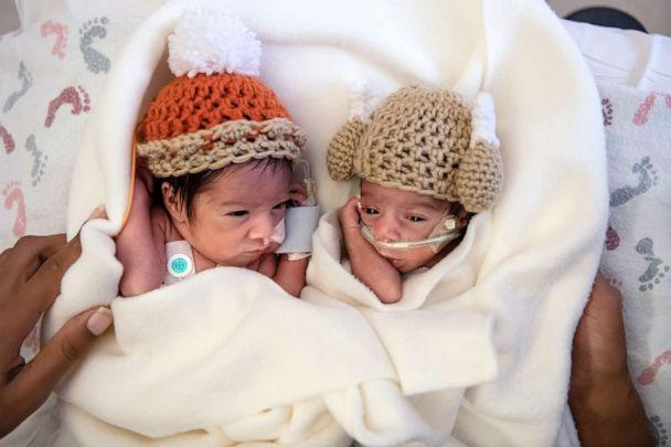 PHOTO: Twins Camden and Callie Riley are 1 of 12 sets of twins in care at Saint Luke's Hospital in Kansas City, Mo. (Helen Ransom/Faces You Love Photography)
