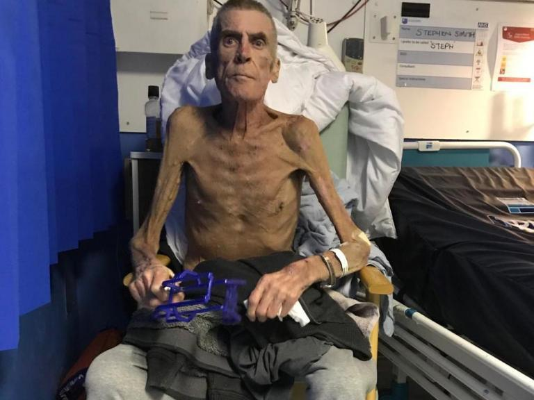 'Let down by the system': Six-stone emaciated man deemed fit for work by DWP dies