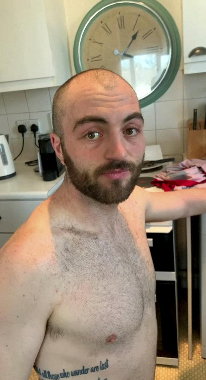 The builder was forced to shave it all off (SWNS)