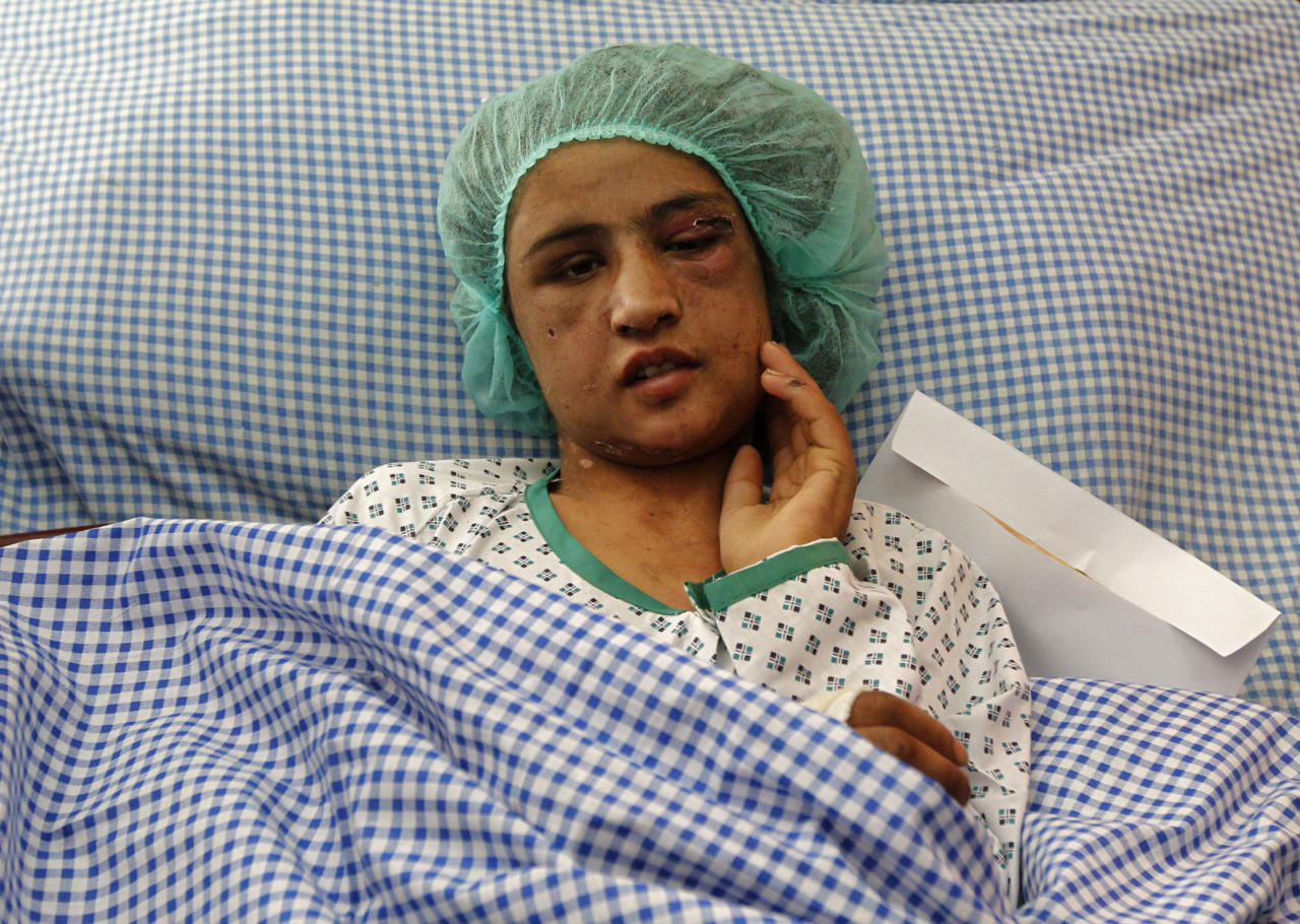 An Afghan girl who was tortured for months after refusing prostitution lies on a hospital bed in Kabul December 31, 2011. Sahar Gul, 15, was brutally tortured, beaten and locked in a toilet by her husband's family for months after she refused to become a prostitute, officials said on Saturday. She was in critical condition when she was rescued from a house in northern Baghlan province last week, and doctors said her recovery could take weeks. REUTERS/Omar Sobhani (AFGHANISTAN - Tags: CRIME LAW HEALTH TPX IMAGES OF THE DAY)