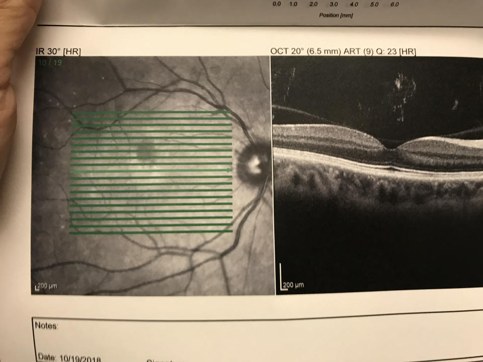 An OCT of the writer's eye showed the oval gray area where the embolism was lodged, cutting oxygen off from that part of her retina. (Photo courtesy of Anna De Souza)