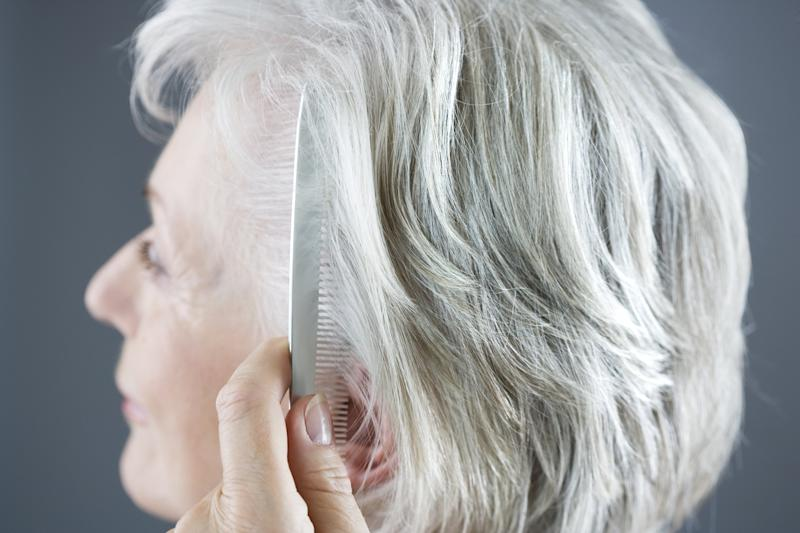 Hair Loss May Be Linked to Air Pollution, According to New Research