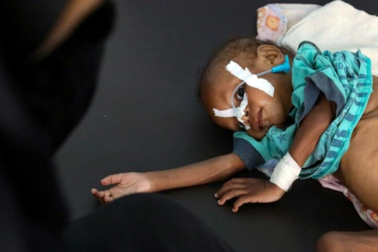A child receives treatment at a malnutrition center in Taez in an image taken on July 3