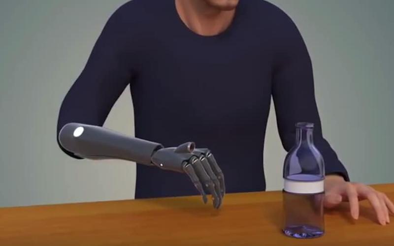 The bionic hand works far faster than traditional prosthetics and does not require training - Credit: Newcastle University