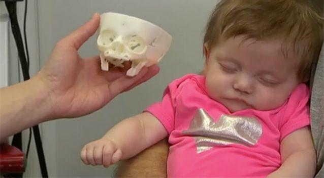 A skull of Sofia's head was made. Source: Today Tonight