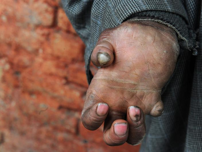 A leprosy patient at a leprosy hospital in India in 2017.