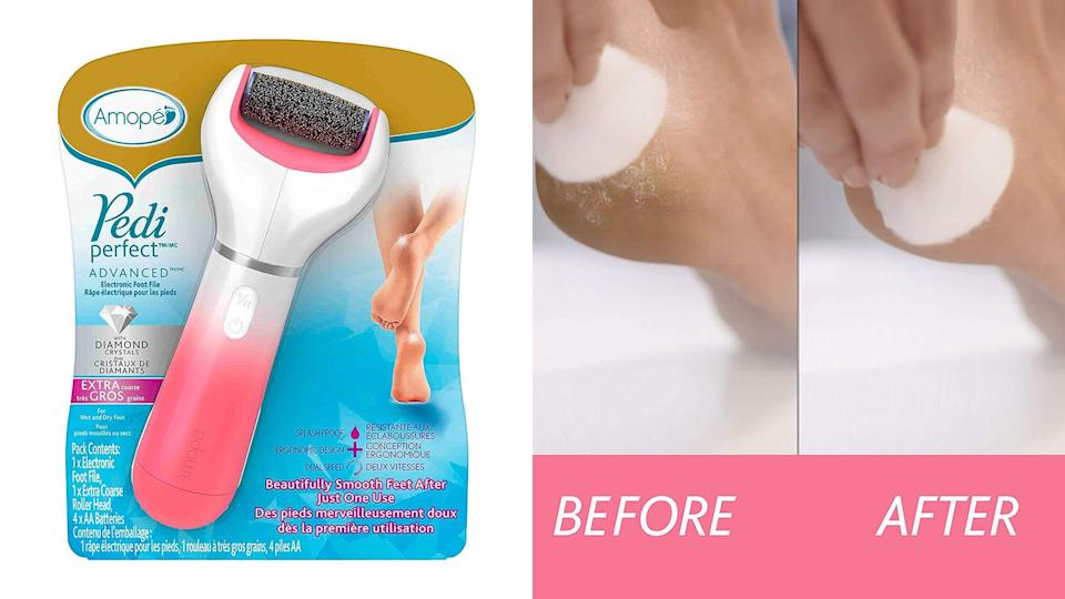 Best weird but practical gifts: Amope Pedi Perfect Electronic Dry Foot File