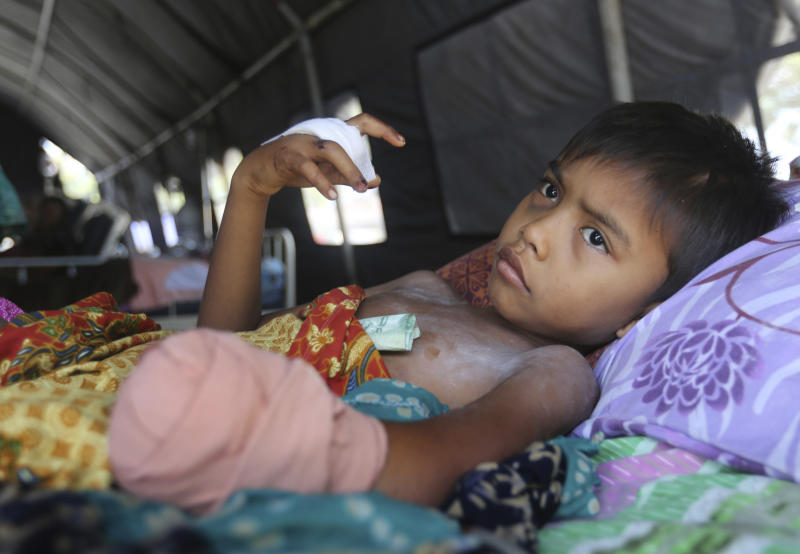 In this Wednesday, Oct. 3, 2018, photo, a child recovers after his left hand was amputated after being injured in the massive earthquake in Palu, Central Sulawesi Indonesia. (AP Photo/Tatan Syuflana)