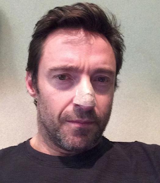 """This undated but recent selfie posted on Instagram by Hugh Jackman shows """"The Wolverine"""" star with his bandaged nose. The 45-year-old Oscar-nominated Jackman said he had a basal cell carcinoma, a common form of skin cancer that is rarely fatal. The note he posted early Friday, Nov. 22, 2013 didn't say when his medical treatment took place. Australia has the highest skin cancer rate in the world, and two in three Australians will be diagnosed before age 70, according to the national health department. (AP Photo/Hugh Jackman)"""