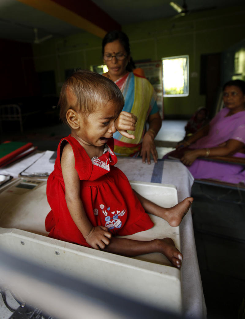 In this photo taken Wednesday, April 13, 2011, one year and 9-month-old Sania cries as she is weighed only 5 kilograms (11 pounds) on a scale after eating a meal at a ward for malnourished children at a government hospital in Morena in the Central Indian State of Madhya Pradesh. The starving girls point to a painful reality revealed in India's most recent census: Despite a booming economy and big cities full of glittering malls and luxury cars, the country is failing its girls. Early results show India has only 914 girls under age 6 for every 1,000 boys. The census in Morena showed that for every 1,000 boys only 825 girls in the district made it to their sixth birthdays, down from an already troubling 829 a decade ago. (AP Photo/Mustafa Quraishi)