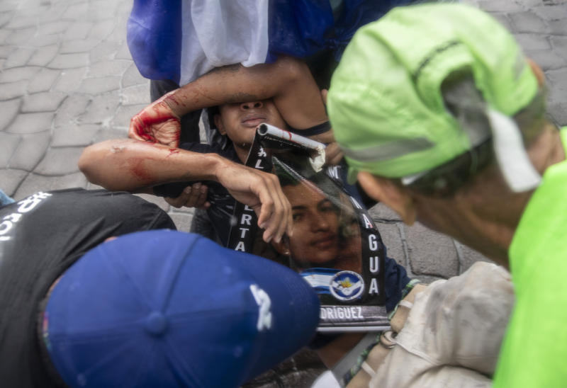 "People come to the aid of a young protester who was injured by a stun bomb launched by police to disperse demonstrators at an anti-government march dubbed, ""Nothing is Normal"" in honor of slain student Matt Romero, in Managua, Nicaragua, Saturday, Sept. 21, 2019. 16-year-old Matt Romero was killed during ""crossfire"" last September when armed men wearing hoods clashed with anti-government protesters. (AP Photo/Alfredo Zuniga)"