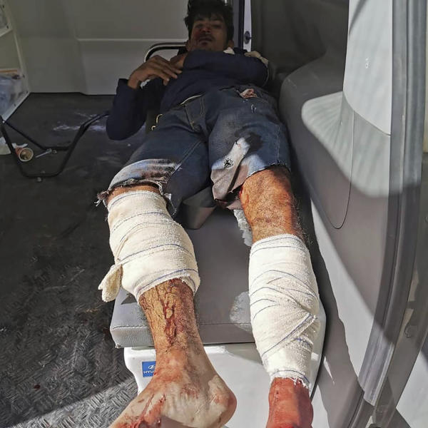 A man injured in an airstrike that hit a biscuit factory waits in an ambulance in the capital, Tripoli, Libya, Monday, Nov. 18, 2019. Tripoli has been the scene of fighting since April between the self-styled Libyan National Army and an array of militias loosely allied with the U.N.-supported but weak government which holds the capital. (Center for Field Medicine and Support via AP)