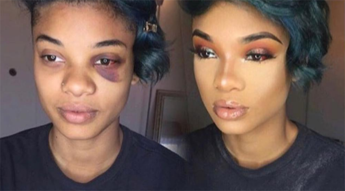 "... photo with a bruise she sustained from her brother, who has a mental illness, and an ""after"" photo post-makeover. (Photo: Instagram/thereal_troi)"