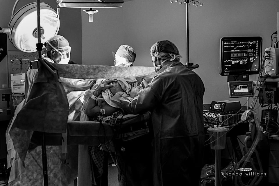 """""""This was the first cesarean I was allowed to photograph, and it was a beautiful, family-centered cesarean. That day I learned the beauty and love that can surround a surgical birth."""""""